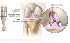 A model of an injury to the ACL.
